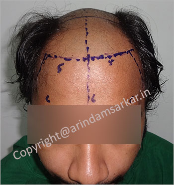 Hair Transplant picture -  pre surgery