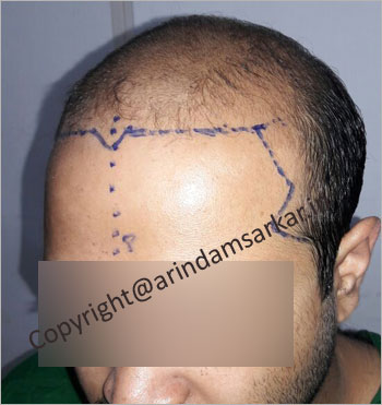 male Hair Transplant picture -  pre surgery
