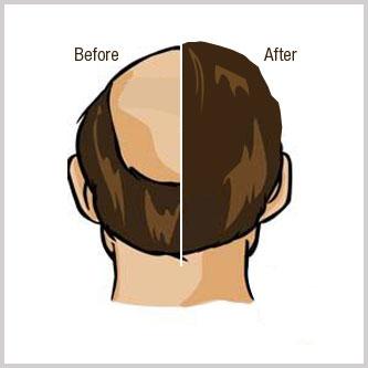 Discount on Hair Transplantation in Kolkata India